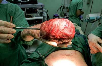 Scientific Advances for Minimally Invasive Surgery in Gynaecology